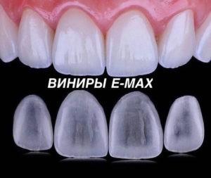 керамические виниры e-max в стоматологии Мединвест